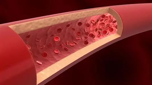 哈佛大学开发生物3D打印复杂血管网络方法,进一步拓展血管疾病研究